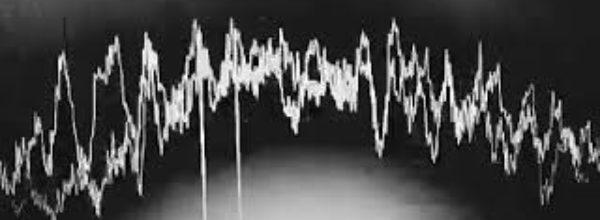 Пульс как у напуганного хомячка | Pulse like a frightened hamster